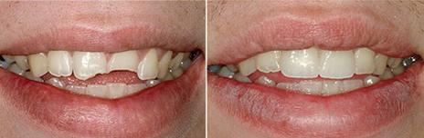 Tandartspraktijk Westeinde > Behandelingen > Afgebroken tand